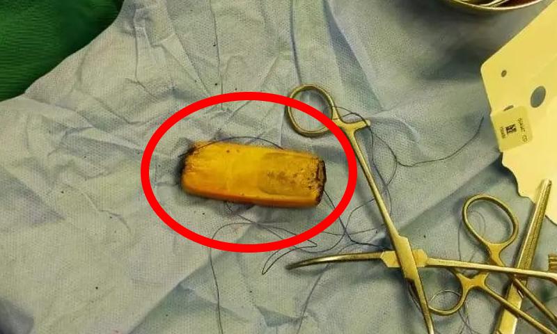 مصر: مرییض کے پیٹ سے موبائل فون چھ ماہ بعد نکال لیا گیا