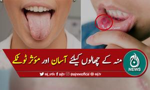 منہ، زبان یا ہونٹوں کے چھالوں کیلئے آسان اور مؤثر ٹوٹکے