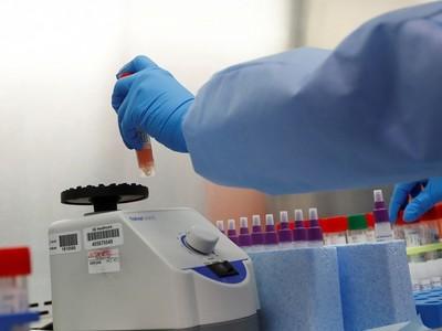 COVID-19 : WHO halts the Solidarity Trial's hydroxychloroquine and lopinavir/ritonavir arms