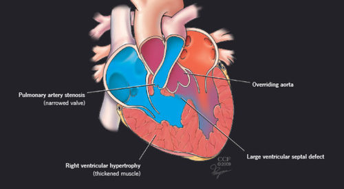 What is the Tetralogy of Fallot? | 8 Things You Should Know About TOF