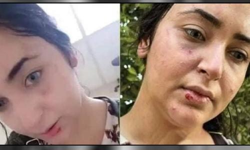 مصر: حجاب نہ کرنے پر خاتون پر تشدد